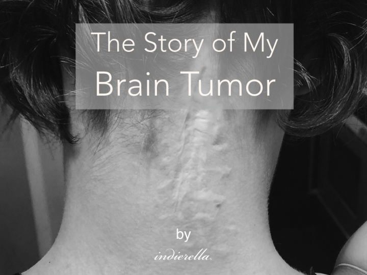 The Story of My Brain Tumor